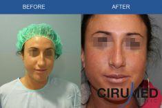 Rhinoplasty (Nose Job) - Photo before - Dr. Alexander Amir Aslani