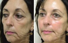 Liquid facelift - Photo before - Mediestetik, skupina klinik