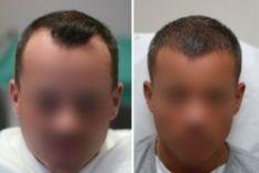 Greffe de cheveux - Cliché avant - Dr. Paul Benet