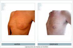 Ginecomastia - Foto Antes de - Dr. Daniel Robles Pereyra