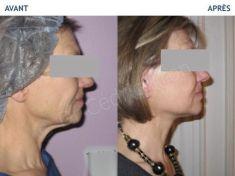 Lifting du visage - Cliché avant - Dr Cédric Kron