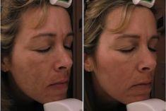 Procedure laser in dermatologia estetica  - Foto del prima - Dr. Luigi Mazzi