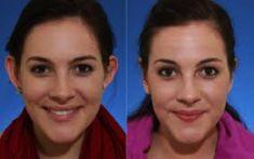 Operácia uší (Otoplastika)   - Fotka pred