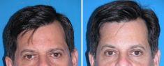 Eyelid surgery (Blepharoplasty) - Photo before - M.D., F.A.C.S. Bernard A. Shuster