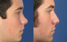 Rhinoplastie - Correction de l'arête du nez