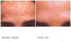 BOTOX® - Zdjęcie przed - Mandala Beauty Clinic