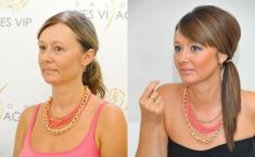 Feather face-lift APTOS - Photo before - Klinika YES VISAGE - klinika estetické medicíny a plastické chirurgie