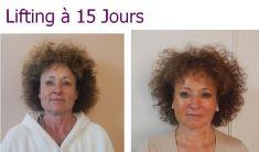 Mini lifting (lifting cervico-facial) - Cliché avant - Dr Laurent Benadiba M.D