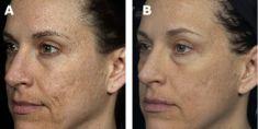 Fractional Laser Resurfacing - Photo before - Bieńkowscy Clinic®