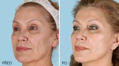 Facelift (operace obličeje), SMAS lifting - Kompletní face a SMAS lift