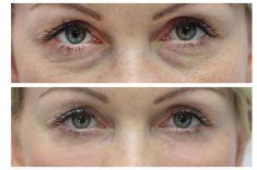Výplně na bázi kyseliny hyaluronové - Žena, 41 let, korekce kruhů pod očima kyselinou hyaluronovou