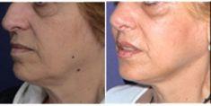 Lifting du visage - Cliché avant - Dr Walid Balti