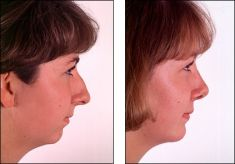 Chirurgie du double-menton - Cliché avant - Dr Dany Gzaiel