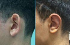 Operazione orecchie (Otoplastica) - Foto del prima - Dott.ssa Moio Mariagrazia