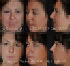 Docteur Victor Medard de Chardon - Cliché avant - Docteur Victor Medard de Chardon
