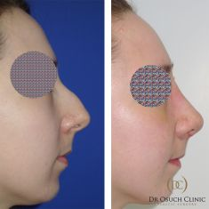 Dr Osuch Clinic - Rhinoplasty is an operation performed under general anaesthesia. It usually takes 2-3 hours. The time required for convalescence after the procedure is approximately 10 days. In Warsaw, at Dr Osuch Clinic, we perform nose correction surgery, bone cartilage, but also total plastic surgery with septum correction. Total plastic surgery is recommended for people who have crooked, humped or distorted nose. Plastic surgery in the cartilaginous part is to refine and reduce the tip of the nose. http://drosuch.pl/en/twarz/rhinoplasty/