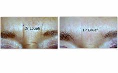 Dr Adel Louafi - Cliché avant - Dr Adel Louafi
