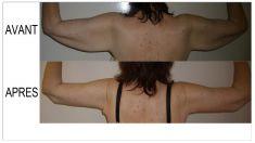 Lifting des bras - Cliché avant - Dr. Armand Halabi