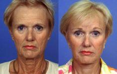 Wellness Kliniek Belgium - Pour un lifting du front, le chirurgien n'effectue que quelques courtes incisions à la lisière du cuir chevelu. Même les muscles sous-cutanés autour des yeux sont corrigés. Le lifting SMAS du cou retend le contour du cou.