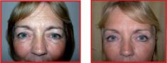 Eyelid surgery (Blepharoplasty) - Photo before - The Hospital Group