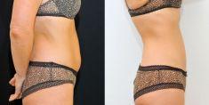 SlimLipo - laserová liposukcia - Fotka pred - Klinika YES VISAGE - klinika estetickej medicíny a plastickej chirurgie