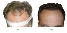 Trapianto capelli - Foto del prima - Dott. Sebastian Torres Farr