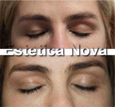 Korekcja powiek (Blepharoplastyka) - Zdjęcie przed - Dr Ewa Rybicka