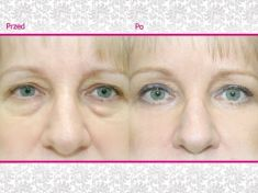 Korekcja powiek (Blepharoplastyka) - Zdjęcie przed - Klinika Wiatroszak - ESTmedica