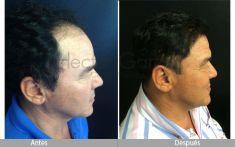 Implante capilar - Foto Antes de - Dr. Hector Garcia