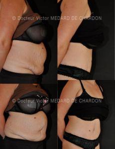 Abdominoplastie - Cliché avant - Docteur Victor Medard de Chardon