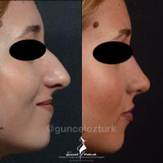 MD Guncel Ozturk - 25-34 year old woman treated with Rhinoplasty