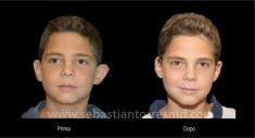 Operazione orecchie (Otoplastica) - Foto del prima - Dott. Sebastian Torres Farr
