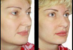 Injekční výplně - fotka před - Klinika estetické medicíny Petra Clinic