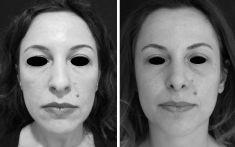 Rinoplastica - Si nota come una piramide nasale più armonica doni a tutto il viso un aspetto più fresco ed un