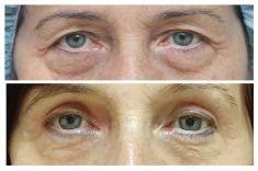 Operace očních víček (Blefaroplastika) - ŽENA, 68 LET, PLASTICKÁ OPERACE HORNÍCH I DOLNÍCH VÍČEK