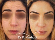 Dr Rani Makhoul - Traitement des rides horizontales du front.
