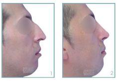 Cirugía de la nariz (Rinoplastia) - Foto Antes de - Dr. Julio César Escobar Fonseca