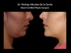 Chin Surgery - Photo before - Dr. Rodrigo Morales De la Cerda