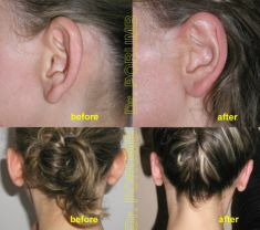 Ear surgery (Otoplasty) - Photo before - Dr. Serban Porumb