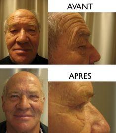 Blépharoplastie - Cliché avant - Dr Christian Zuber