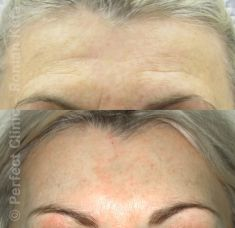 Forehead lift  (Brow lift) - Photo before - MUDr. Roman Kufa - Perfect Clinic