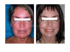 Lifting viso - Lifting cervico facciale