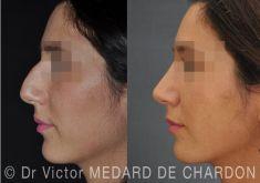 Docteur Victor Medard de Chardon - Correction d
