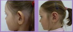 Operace uší (Otoplastika) - fotka před - MUDr. Ludmila Fialová