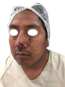 Cirugía reconstructiva - Foto Antes de - Dr. Ignacio Tapia Vargas
