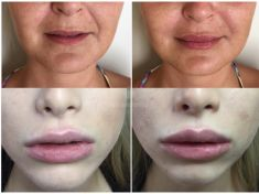 Aumento labbra - Foto del prima - Dott. Daniele Donnamaria