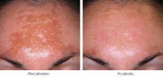 Age Spots Treatment - Photo before - Laserová dermatologická klinika ALTOS