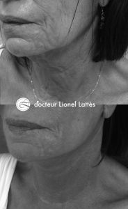 Lifting du visage - Cliché avant - Dr Lionel Lattès
