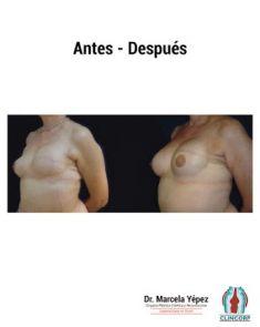 Dra. Marcela Yépez Intriago - Foto Antes de - Dra. Marcela Yépez Intriago