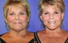 Mini lifting (lifting cervico-facial) - Un Minilift, aussi appelé Lift S, Quick Minilift ou Week-end facelift, produit ses effets rajeunissants surtout sur les joues et les bajoues du maxillaire inférieur de la mâchoire.
